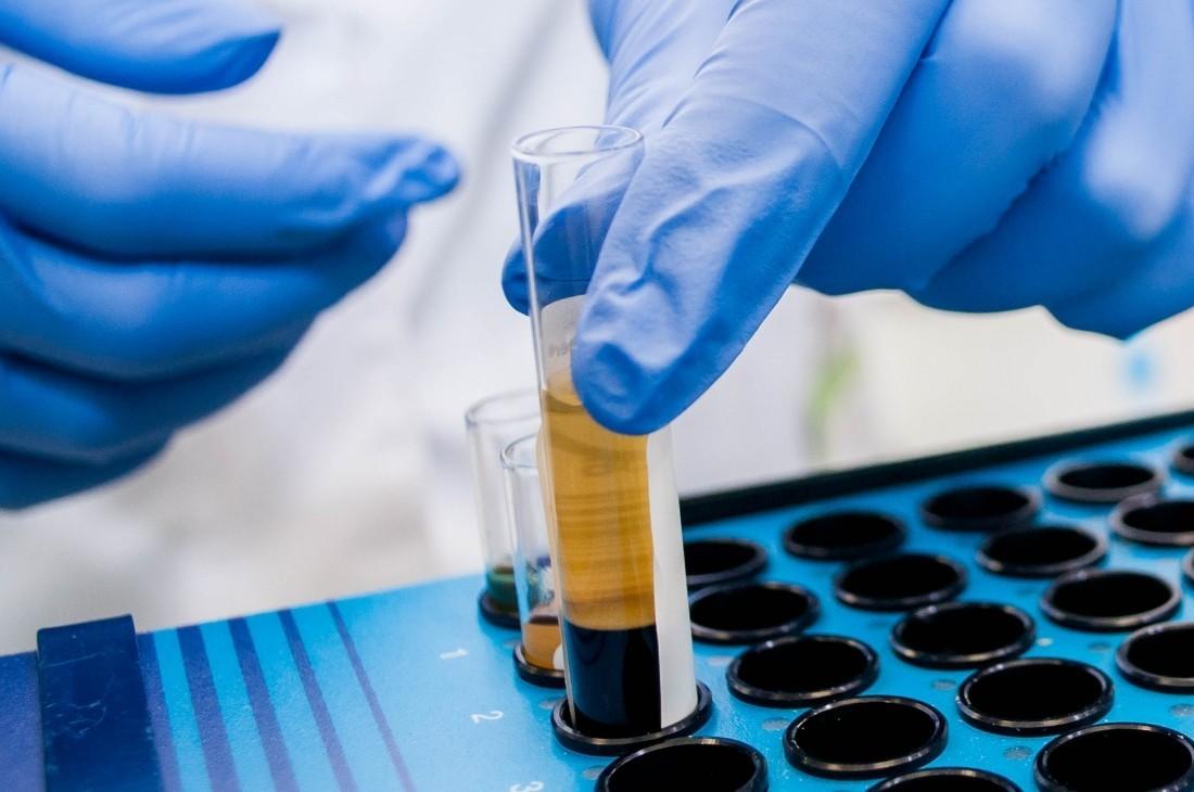 Москва больница анализы крови что такое анализ крови на ат-о