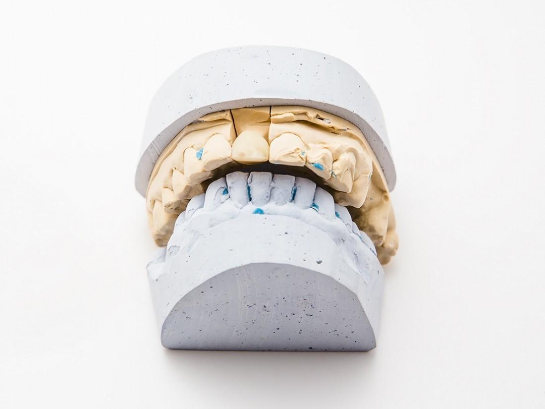 Канадские ученые создали «вечную» зубную пломбу